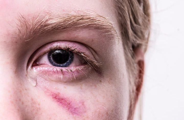 تفسير حلم دموع العين بدون بكاء للعزباء