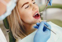 تفسير حلم سقوط الأسنان في اليد للعزباء