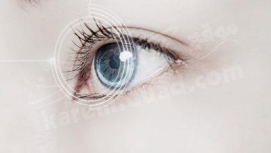 أعراض العين المستقرة في الرأس